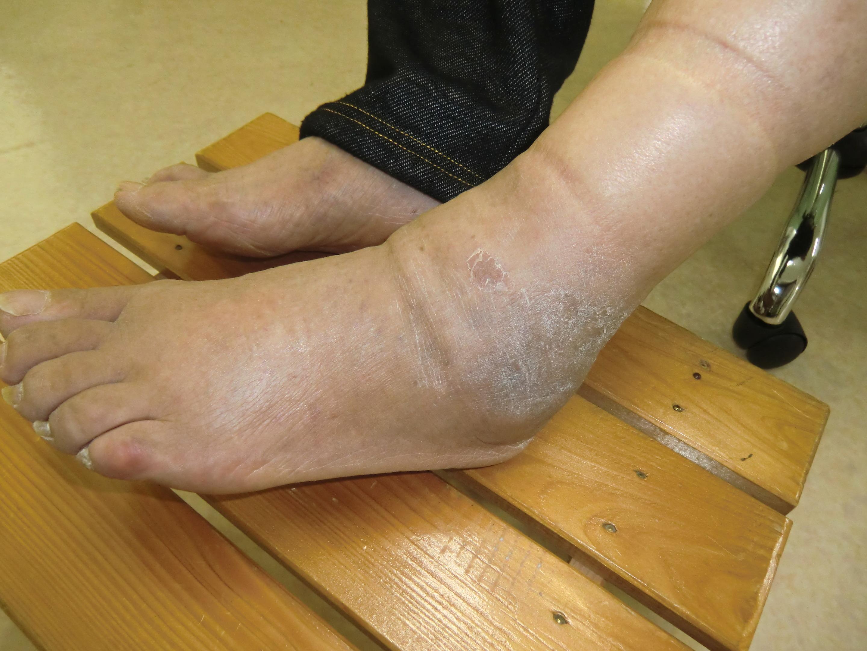治療前の左下腿部著明な浮腫と疼痛