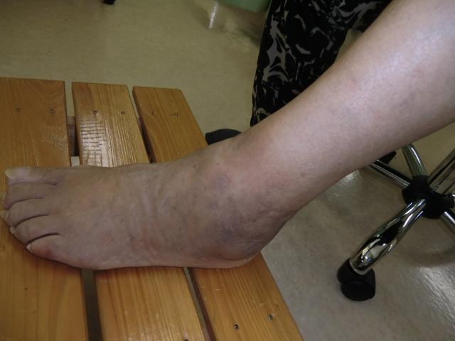 ハリ治療6日以後 左足のひどい腫れと痛み