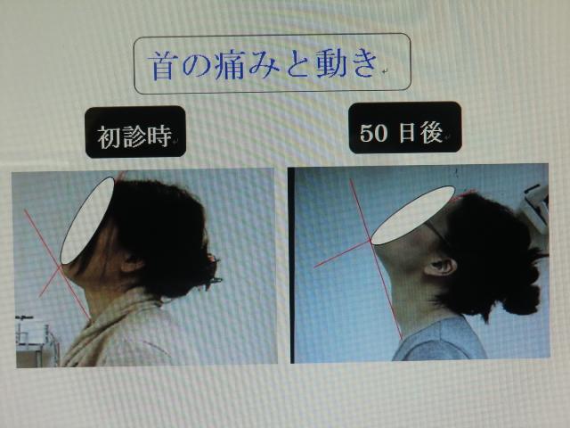 頚部動作の比較