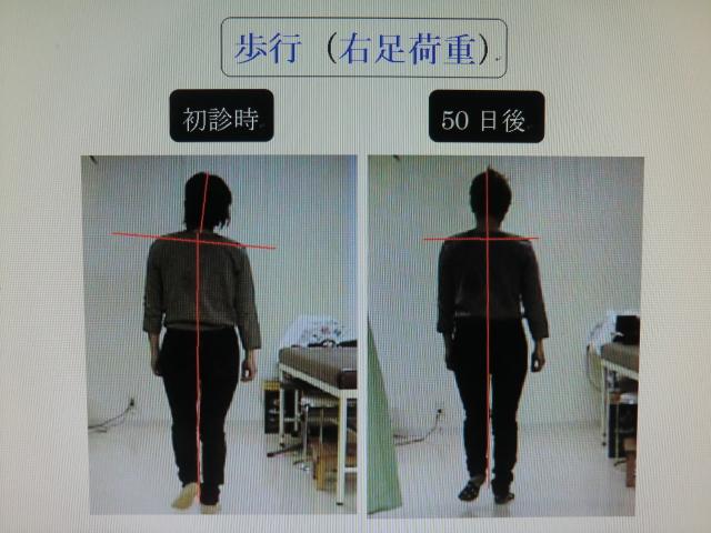 歩行姿勢の比較