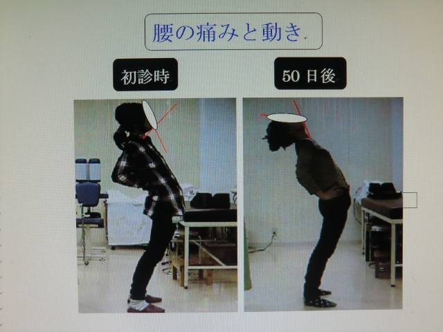 腰部動作の比較