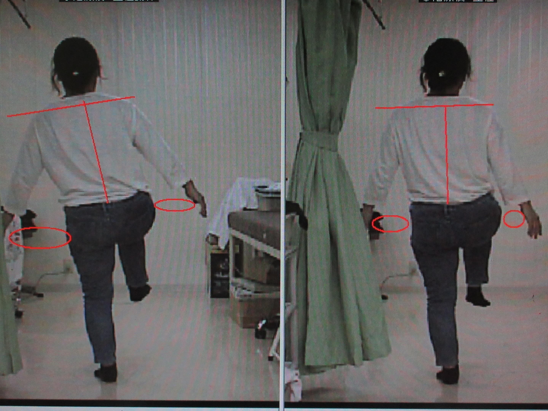 ①治療前後 右下肢挙上