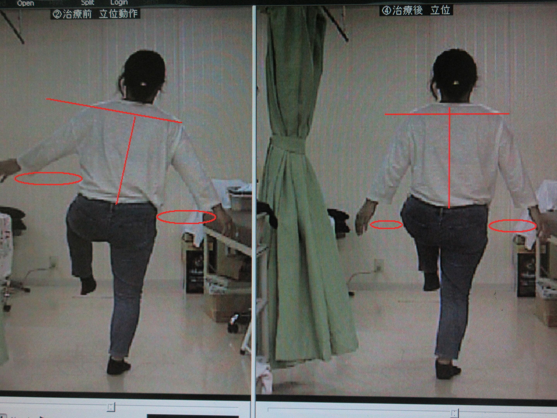 ②治療前後 左足挙上