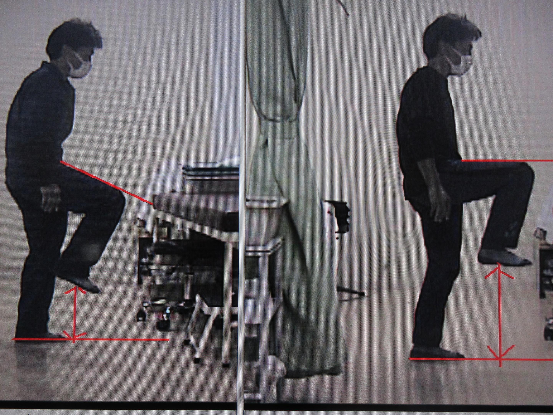 治療前後下肢挙上