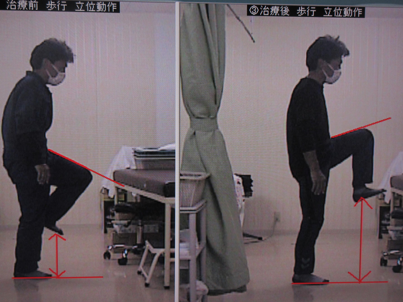 治療前後 左下肢挙上
