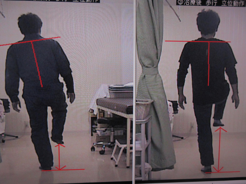 治療前後 後方 右下肢挙上
