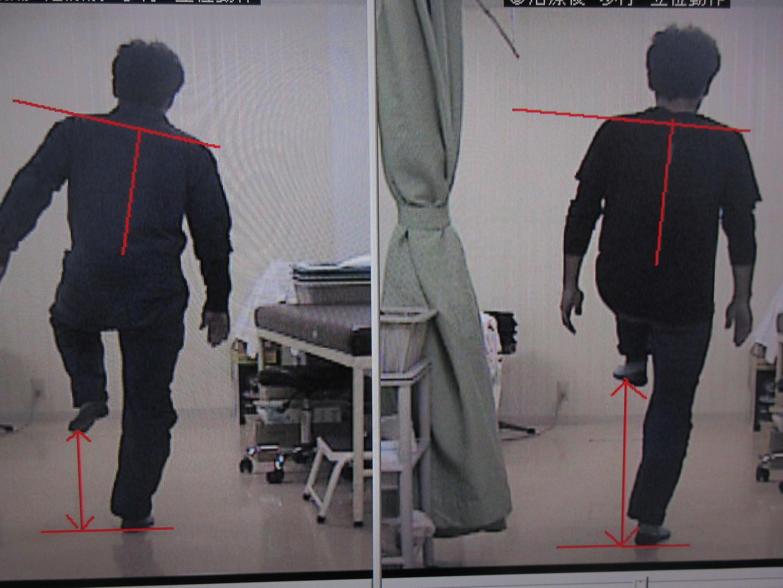 治療前後 後方 左下肢挙上