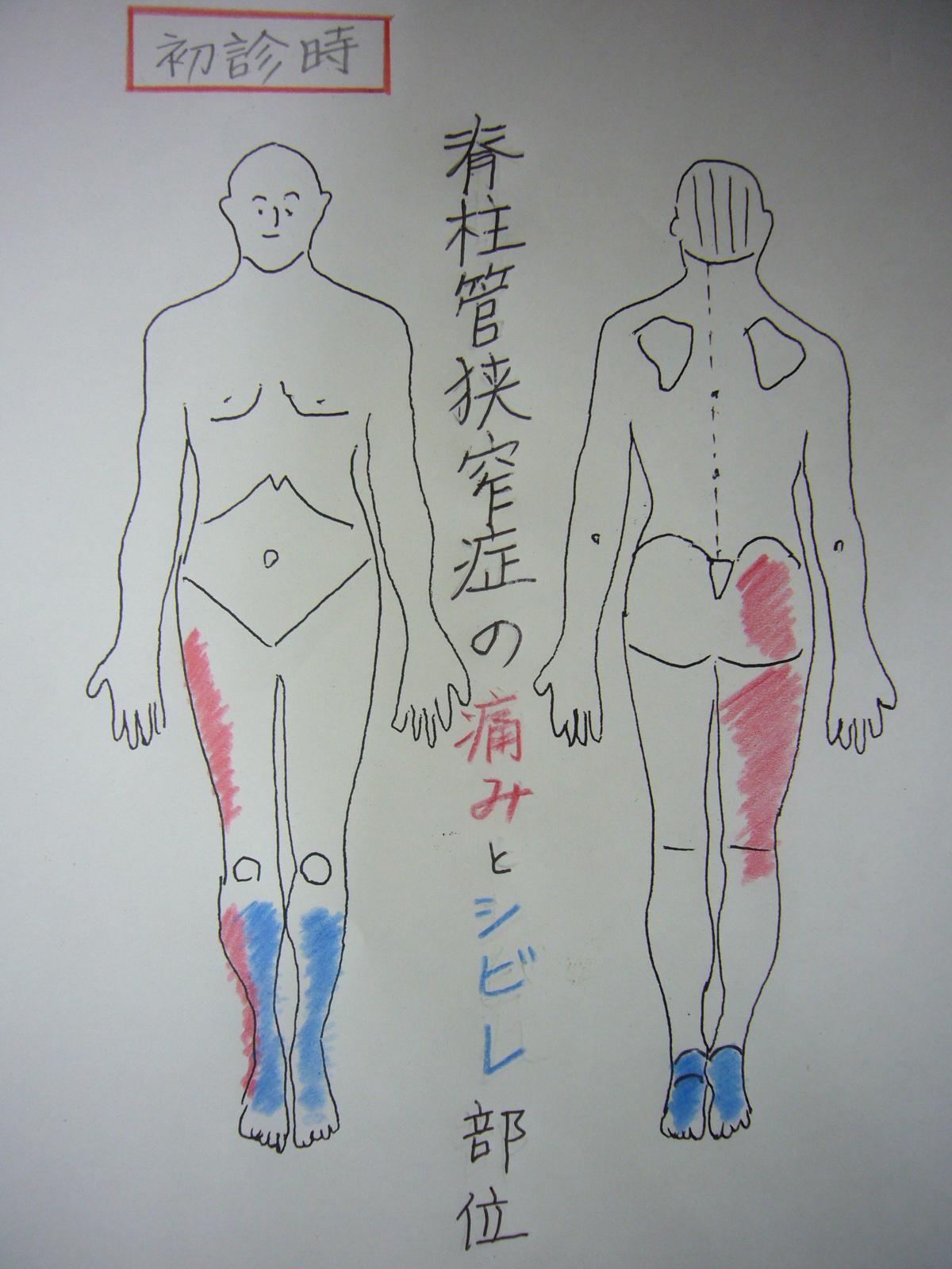 狭窄 動画 ストレッチ 管 症 脊柱